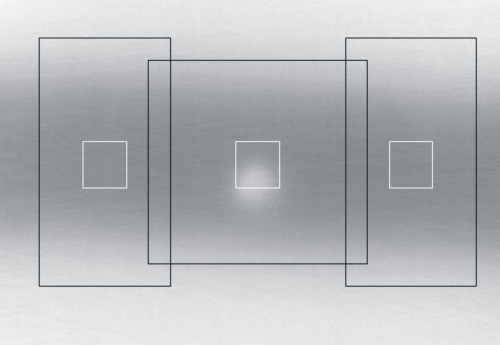 Camera-assisted Vision System